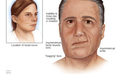What Causes Bell's Palsy
